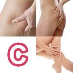 Localizzazione della Cellulite