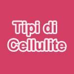 Tipologie di Cellulite